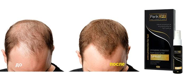 ParikOff от облысения: редкие, ломкие, тусклые волосы — теперь в прошлом!